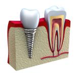 Implante Dentário : Preço e informações