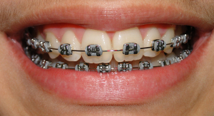 Aparelho Dentário Preço