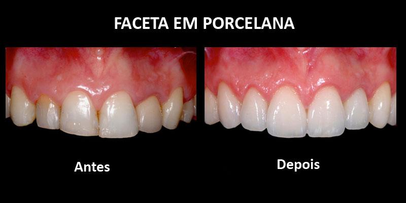antes e depois do uso de stanozolol