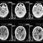 Tomografia Computadorizada – Preço