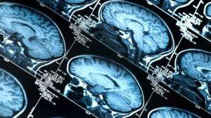 Quanto Custa Uma Ressonância Magnética