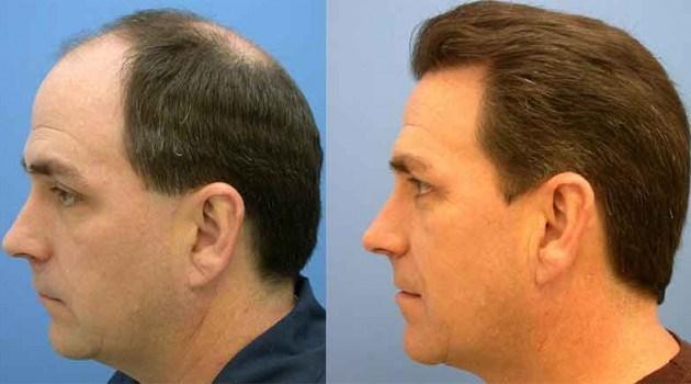 Comprar o l oreal elseve óleo de cabelo