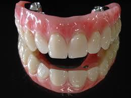 Prótese dentária - Preço