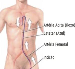Cateterismo - Quanto custa
