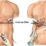 Cirurgia de pedra na vesícula – Preço
