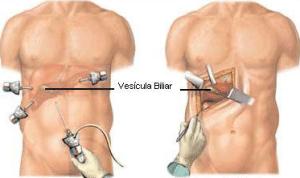 cirurgia de pedra na vesicula - Preço