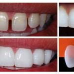 Lentes de Contato Dental: Preço