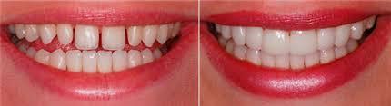 Lentes de contato dental - Preço