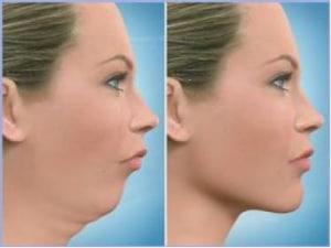 cirurgia ortognatica- Preço