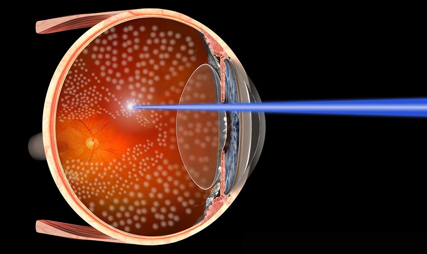 Fotocoagulação a laser - Preço