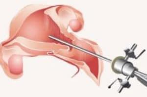 Histeroscopia Diagnóstica - Preço