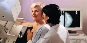 Mamografia Digital - Preço
