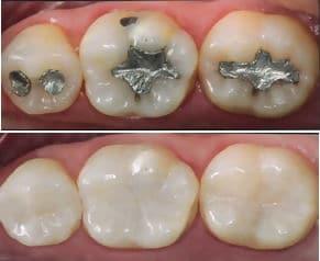 Restauração dentária - Preço