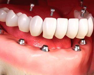 Protocolo Dental - Preço