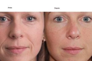 Preenchimento facial- Preço