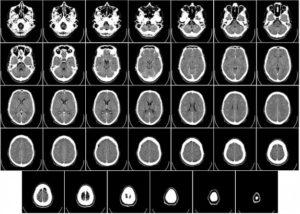 Tomografia do crânio - Quanto custa