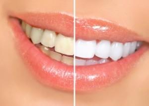 Clareamento dental - Preço