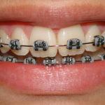 Aparelho Dentário: Tipos e Preços