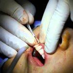 Gengivoplastia: Preço, o que é, como é feito
