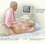 Ecocardiograma: Preço, como é realizado