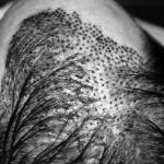 Implante Capilar – Preço