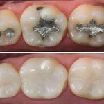 Obturação Dentária Preço: Confira o valor em 2020