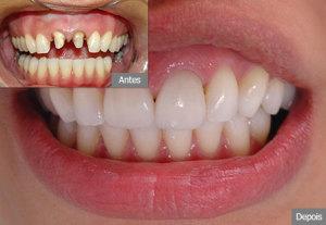 Prótese dentária - Quanto custa