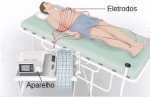 Eletrocardiograma - Preço