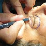 Cirurgia de Pálpebras – Preço