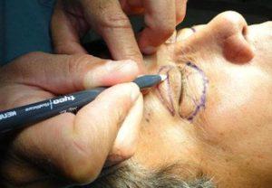 Cirurgia de Pálpebras - Preço
