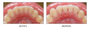 Limpeza dentária - Quanto custa