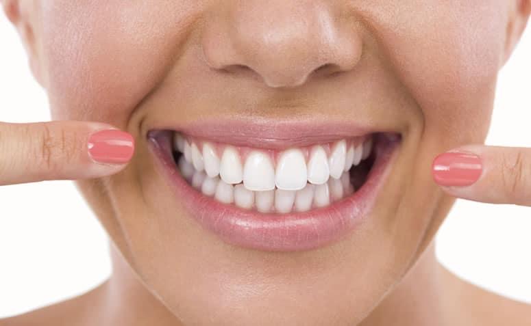 Clareamento Dental Preco Tratamentos Quanto Custa Um