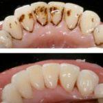 Raspagem Dentária – Preço, como é feito