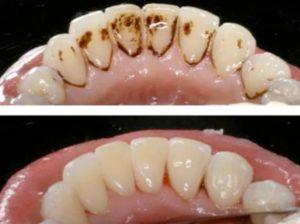 Raspagem dental - Preço