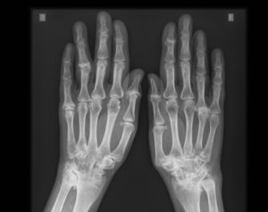Ressonancia magnética da mão - Preço