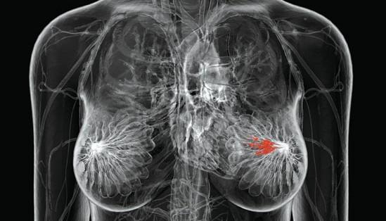 Ressonância Magnética da mama- Quanto custa