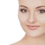 Lifting Facial Sem Cirurgia com Fios Absorvíveis – Preço