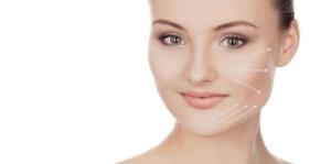 Lifting Facial Sem Cirurgia com Fios Absorvíveis - Preço