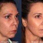 Resurfx para tratar a pele: Veja como funciona e preço