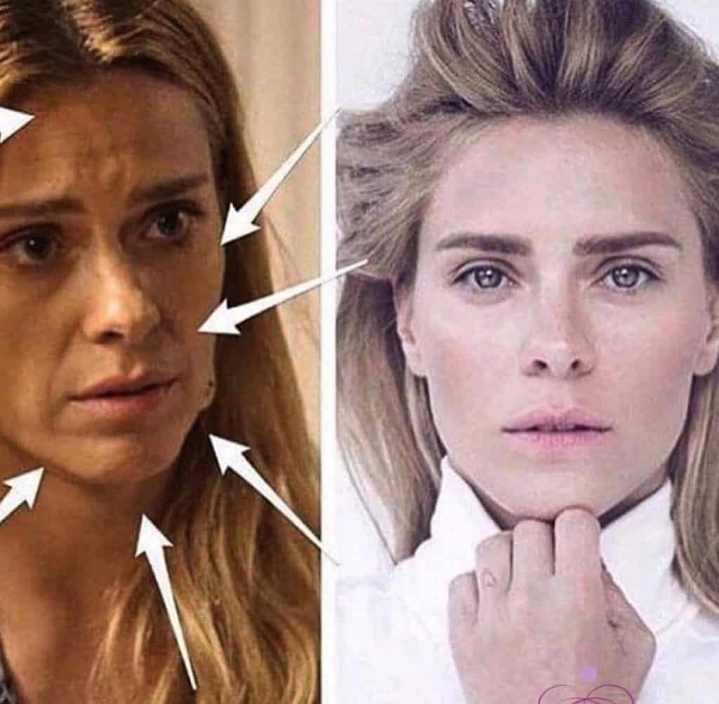OnoWave facial antes e depois