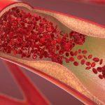 Exame de trombofilia – Valor, Informações