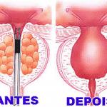 Cirurgia de Raspagem de próstata HPB – Qual o valor?