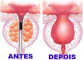 Cirurgia de Raspagem de próstata preço